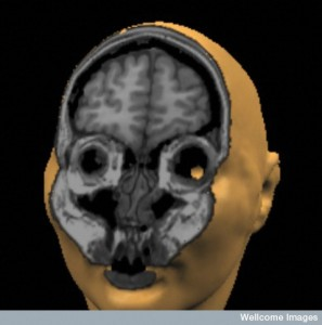 MRI Movie of the Head