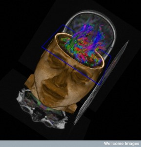 Brain Tractography: Visualising Neuronal Tracts